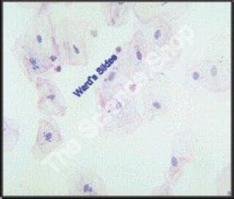 Barr Bodies Cheek cells of normal human male Barr bodies absent from nuclei